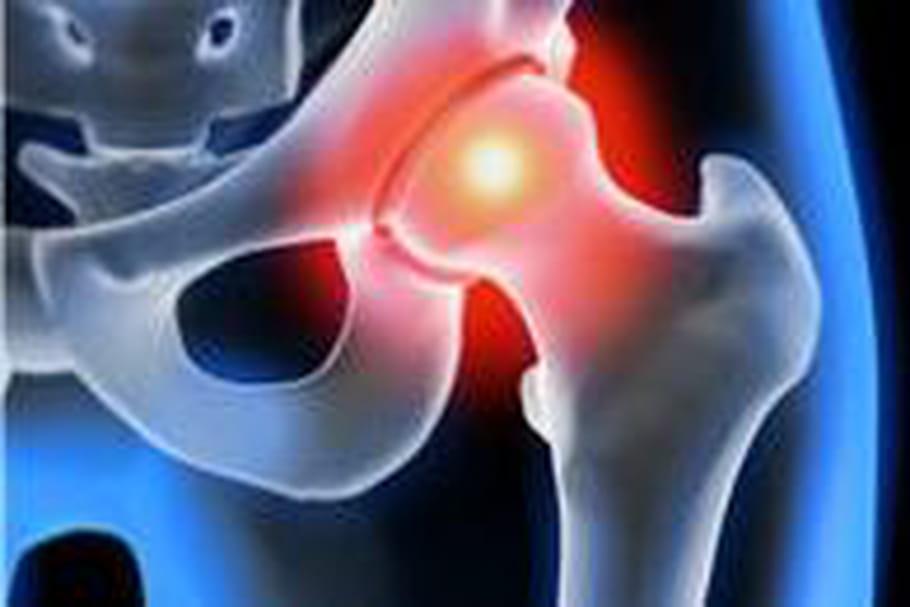 Inquiétude autour des prothèses de hanche défectueuses