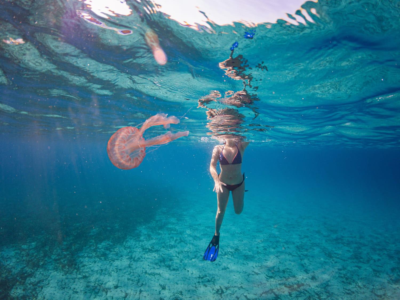 Piqûre de méduse: photo, allergie, remède, uriner dessus?