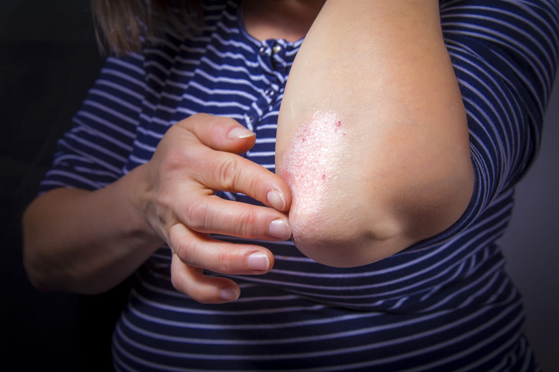 Psoriasis : en plaques, goutte ou inversé... peut-on en ...