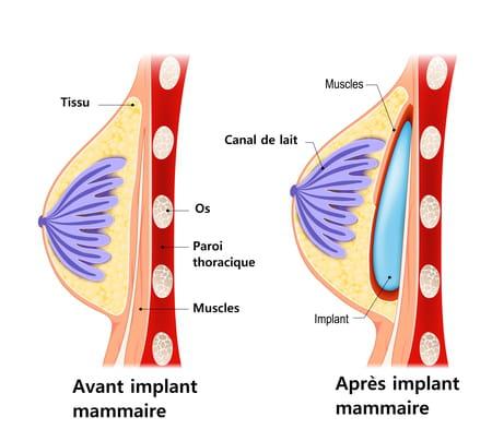 schema-implant-mammaire