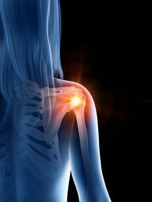 rhumatisme chez la femme à l'épaule
