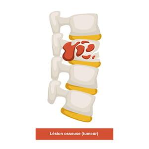 Schéma d'une lésion osseuse (tumeur)