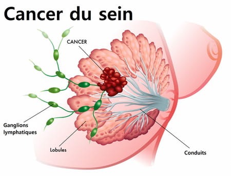 ablation du sein - mastectomie - cancer du sein