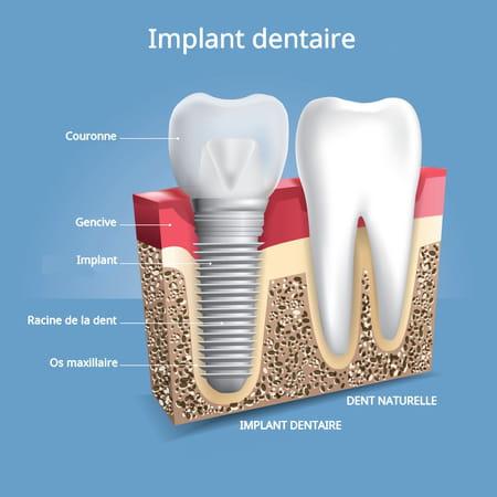 implant dentaire schéma