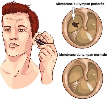 Schéma d'un tympan perforé