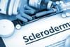 Sclérodermie: quel diagnostic et quels traitements?