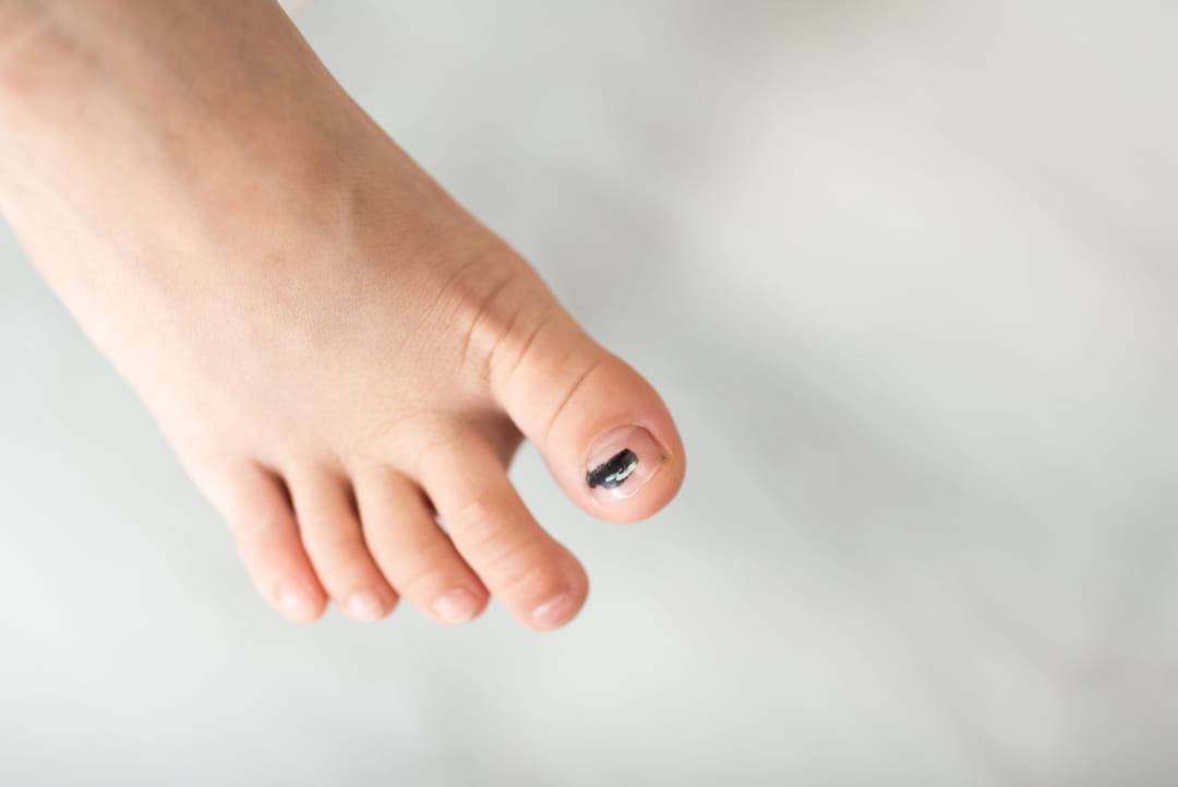tache noire ongle pied