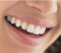 1 Français sur 10 serait susceptible de développer une lésion précancéreuse dans la bouche