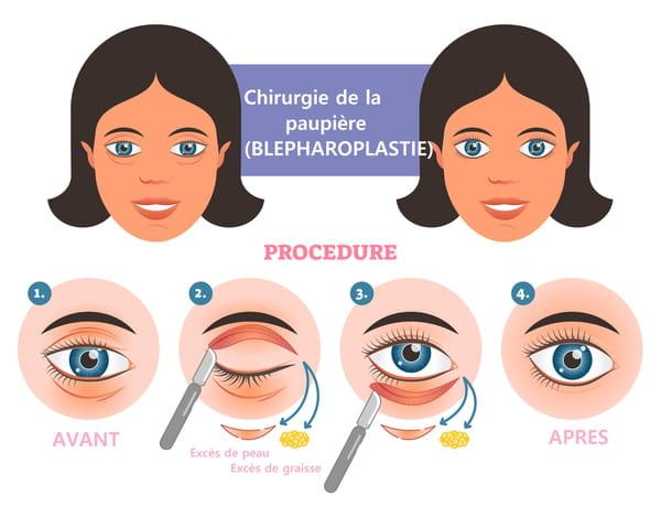 Blépharoplastie - chirurgie de la paupière