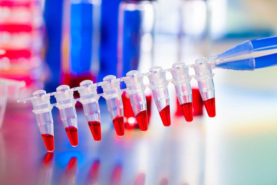 Cancer : l'immunothérapie, porteuse d'espoir