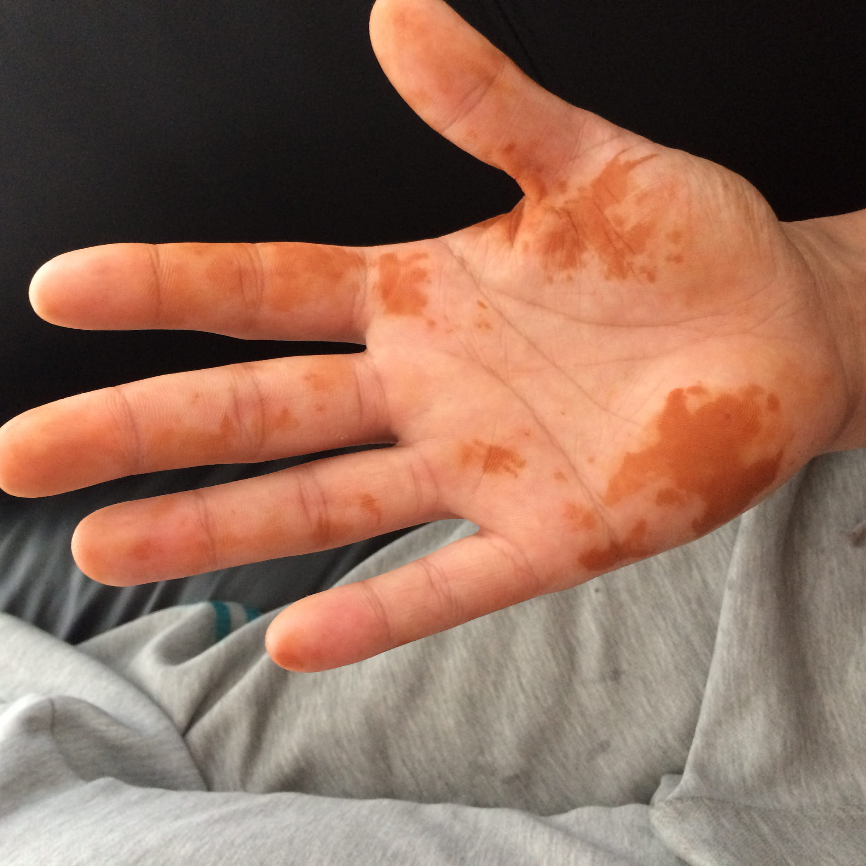 se reveiller avec des traces orange sur les mains sant m decine. Black Bedroom Furniture Sets. Home Design Ideas