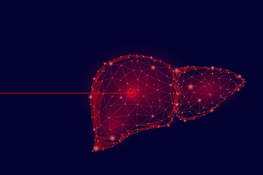 Métastases au foie: symptômes, traitement, quelle survie?