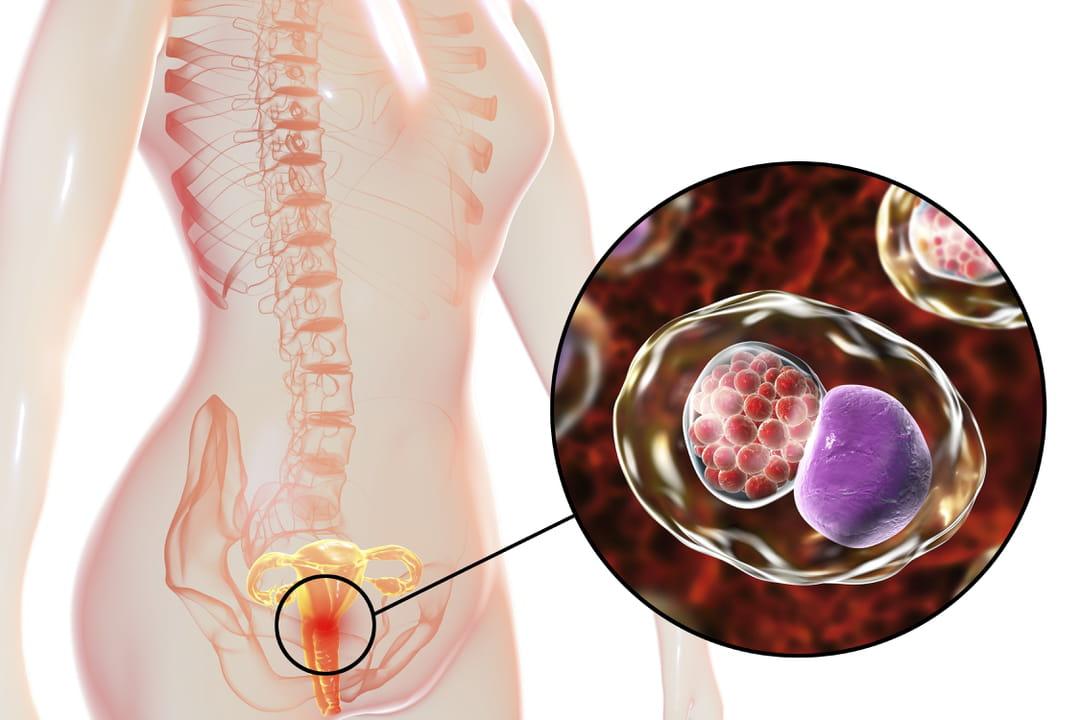 Chlamydia : symptômes, transmission, causes et traitement de cette IST