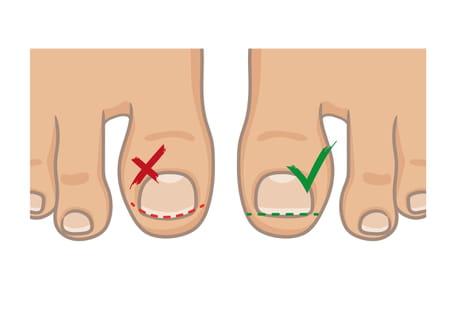 comment se couper les ongles des pieds
