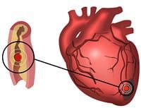 le cholestérol peut augmenter à votre insu.