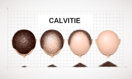 calvitie