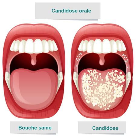 candidose orale