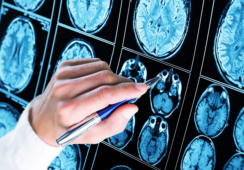 Démence fronto-temporale: signes, cause, test, lien avec Alzheimer?