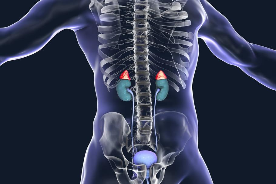 Adénome surrénalien: symptômes, traitement, bilan