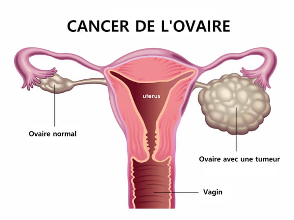Cancer de l'ovaire schéma