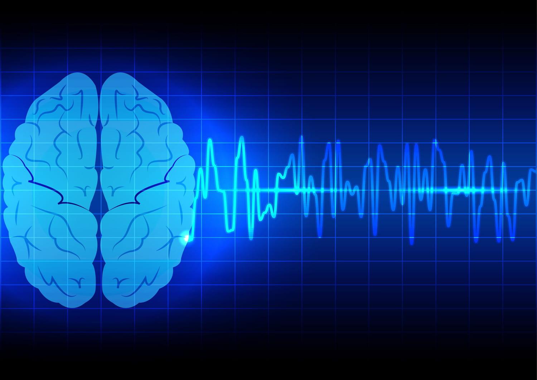 Mort cérébrale: définition, causes, peut-on se réveiller?