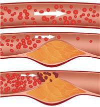 petit à petit le cholestérol se dépose et bouche le passage du sang : c'est
