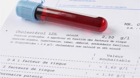 Examen d'urines : recherche de protéinurie, examen cytobactériologique des urines, hémoglobinurie...