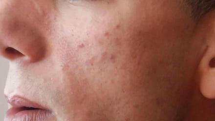 Fabuleux Tache sur le visage ? - Forum Beauté de la peau - Santé-Médecine BD03