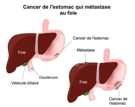Schéma d'un cancer de l'estomac qui envoie une métastase au foie