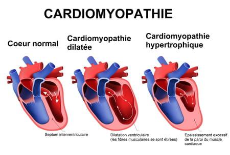 Schéma d'une cardiomyopathie