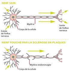 la sclérose en plaques s'attaque à la gaine du nerf, la myéline, mais aussi au
