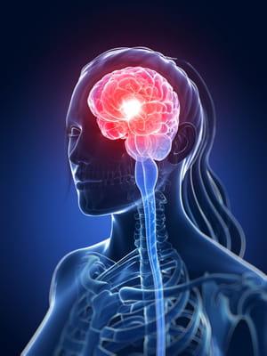 tumeur cerveau de la femme