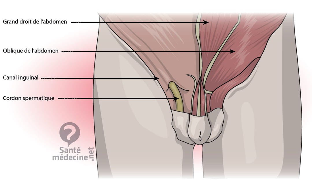 Hernie inguinale (étranglée) : cause, opération et séquelles