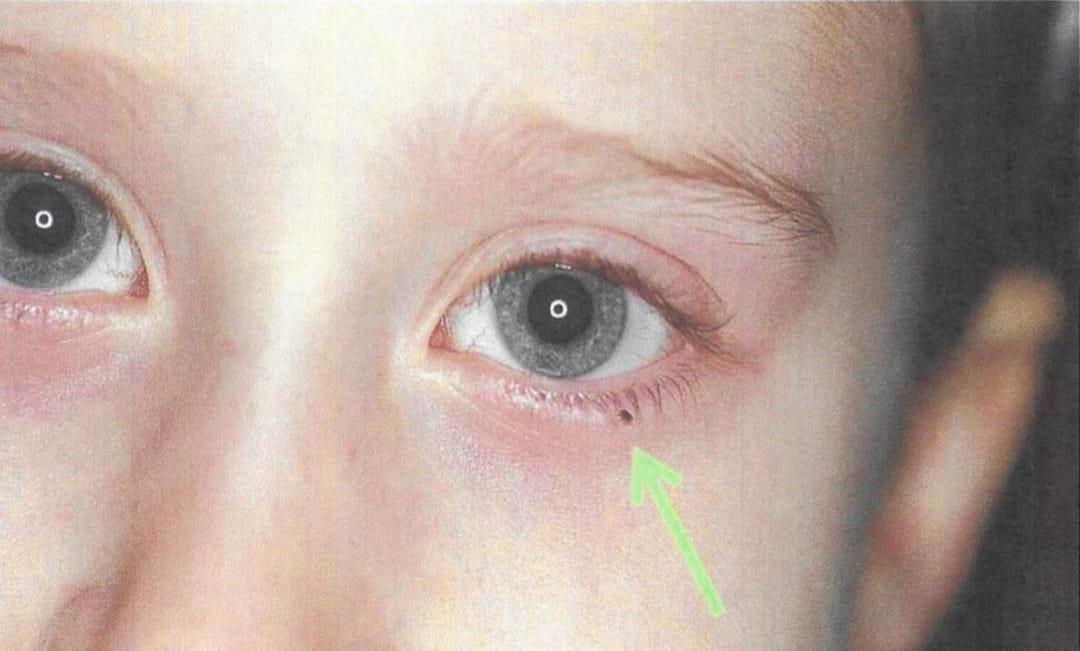 Piqûre de tique : photos, symptômes, que faire ?
