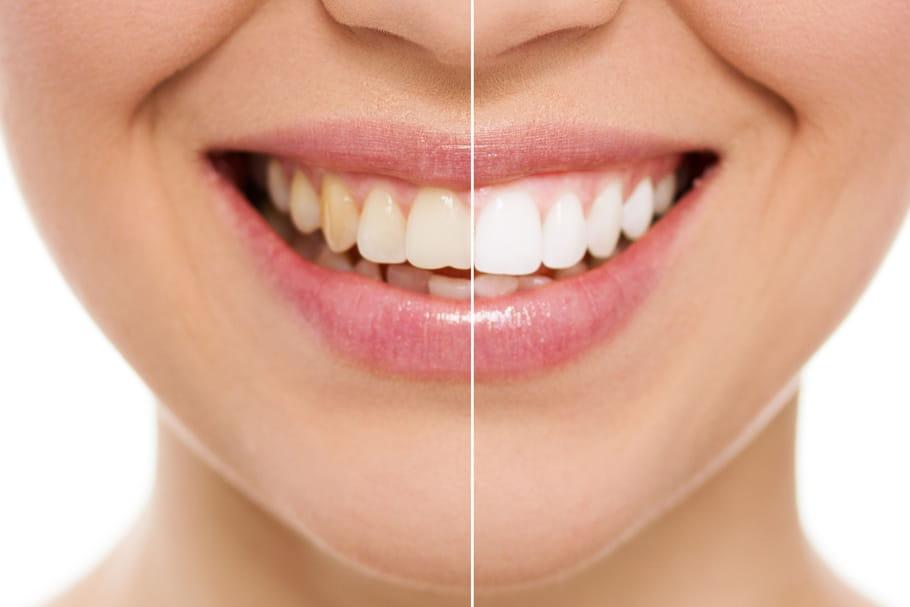 Comment se blanchir les dents