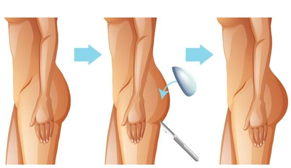 Implant fessier avant après