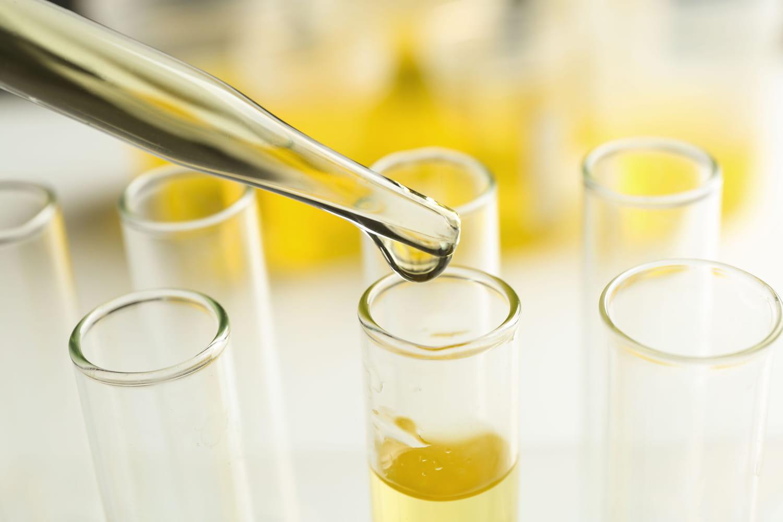 Présence de glucose dans les urines: à cause de quoi?