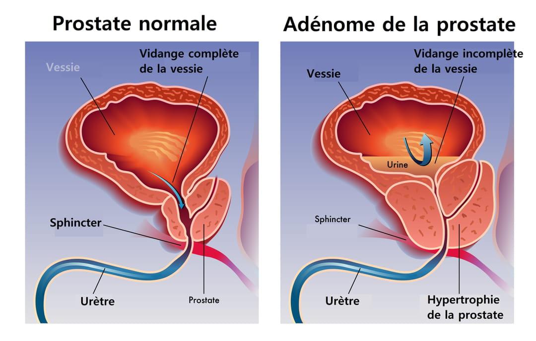 prostata 13 cc