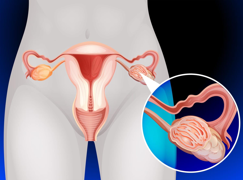 Cancer de l'ovaire: âge, symptômes, dépistage et traitement