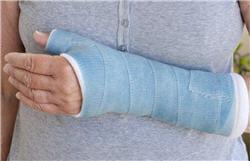 une fracture ostéoporotique pourrait être le signe d'une santé précaire.