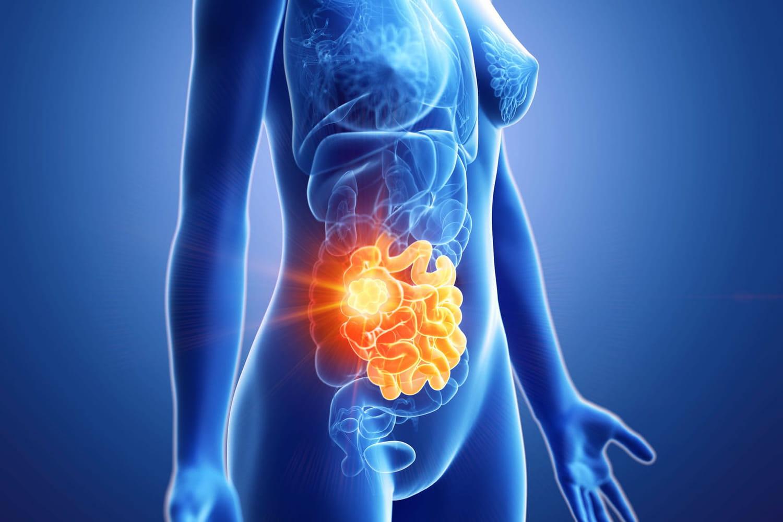 Cancer secondaire: symptômes, traitement, quelle espérance de vie?