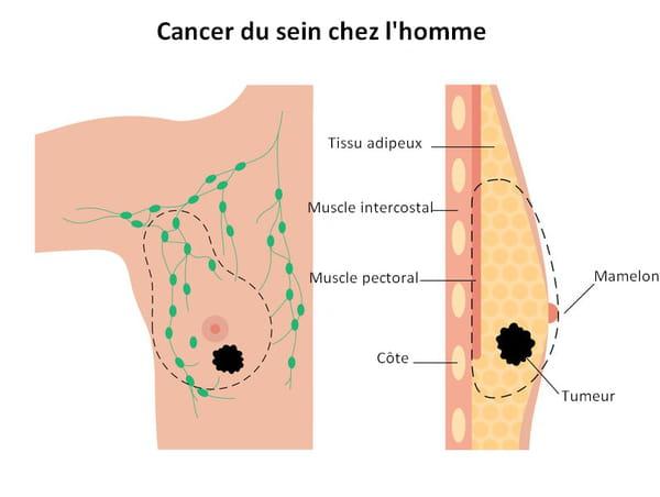 schéma cancer sein homme