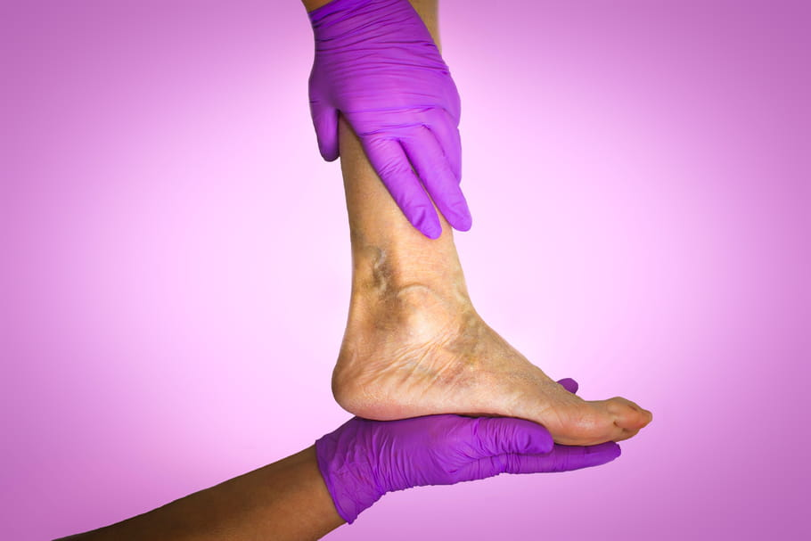 Mauvaise circulation sanguine: signes typiques et solutions