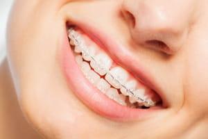 appareil dentaire transparent