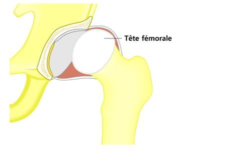 Luxation de la hanche schéma