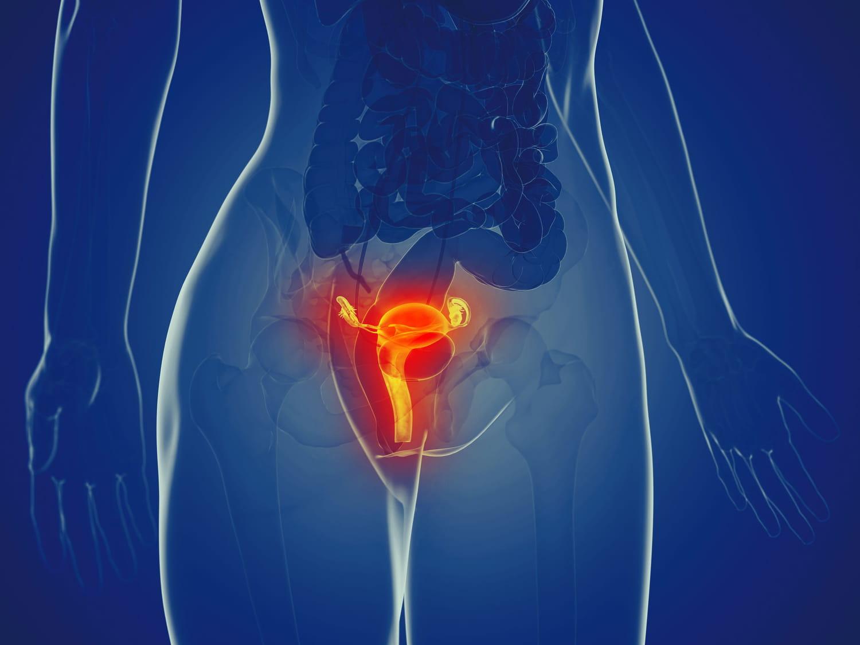 Pyosalpinx: définition, causes, traitements