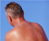 la propolis peut aussi apaiser une peau touchée par les coups de soleil.