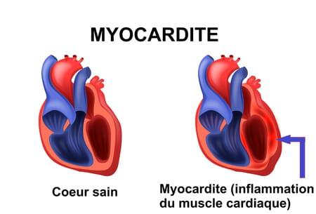 Schéma d'une myocardite inflammation du coeur