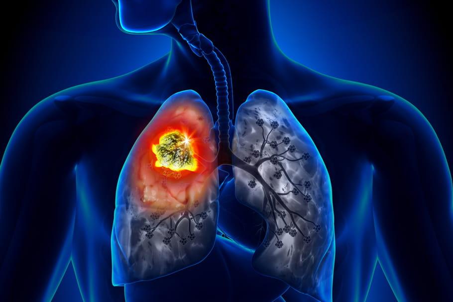 Cancer: symptômes, guérison, taux de survie