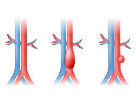 anevrisme-rupture-aortique